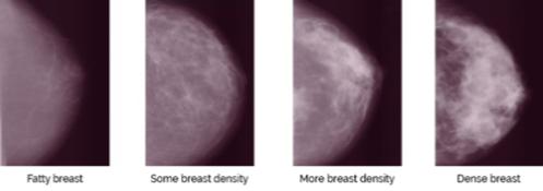 Susan G Komen San Diego Breast Density And Breast Cancer Risk